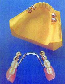 Unterkiefer Teleskopprothese