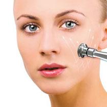 Günstige Kosmetik Behandlungen - Microdermabrasion und Dauerhafte Haarentferung durch IPL Laser