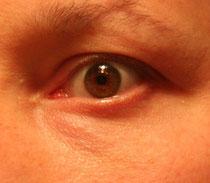 Ja, Sie können auch Ihre Augenmuskulatur trainieren!
