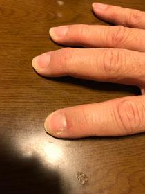 人差し指だけ爪が短い。わかるかな?