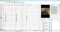 EEG-Wiedergabe