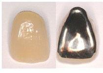 歯の黄ばみ着色の治療 かぶせ