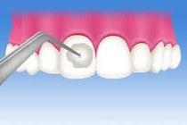 虫歯予防にフッ素塗布
