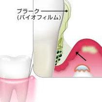 プラークは虫歯や歯周病 口臭の原因になります