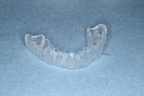 歯ぎしり対策にマウスピース