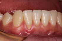 歯ぐきが下がってしまった状態