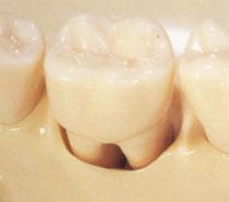歯周病により歯の根が露出