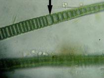 シアノバクテリアの細胞  Photo by Nat Tarbox