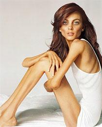 http://3.bp.blogspot.com/-ezmTXmlXJp8/TXZZRGbi86I/AAAAAAAAA5c/LdQSpU3_RrM/s1600/anorexia1206lindsay-lohan.jpg