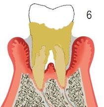 歯周炎後期
