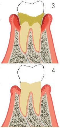 歯周炎初期