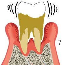 歯周炎末期