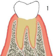 正常歯周組織