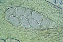 Sporenschlauch des Winzigen Kotlings (Ascobolus immersus).