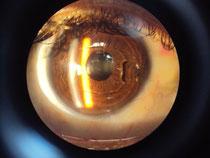 Lente fáquico en paciente con miopía de -22.00 dioptrías.