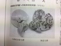 ガン細胞の肝臓への転移抑制実験