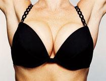 Come aumentare il seno con la mastoplastica, consigli e costi dell'intervento