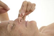 Ursprünglich stammt die Akupunktur aus der Traditionellen Chinesischen Medizin. Sie wurde aber längst an die westliche Kultur angepasst. Foto:Vincius Tupinamba/Photoxpress.com