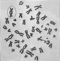 Dicentrie d'un chromosome