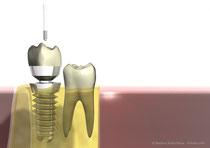 Двухкомпонентный имплантат с завинчивающейся коронкой
