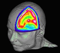 bildgebende Verfahren: der Blick ins lebende Gehirn