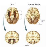 Gehirnchirurgische Entfernung des H. bei Molaison