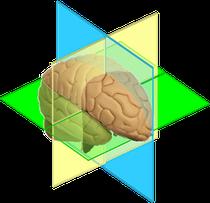 Modell des Gehirns, Darstellung der Gehirnareale