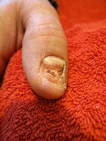 Verletzung am Daumennagel