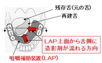 図4 LAP上の食塊の流れ