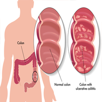 low cost colon cancer surgery in India
