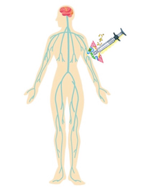 アクティベータによる適度な刺激で、神経の流れを整え内側上顆炎の痛みを軽くします