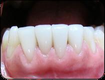 Veneers der unteren vier Schneidezähne (Aufnahme 4 Jahre nach dem Einsetzen): Das Zahnfleisch ist hell rosa und gesund. (© Doc S)