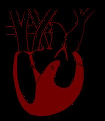 Schematischer, stark vereinfachter Schnitt durch das Herz eines Warans. KK=Körperkreislauf, LK=Lungenkreislauf, RVH=Rechter Vorhof, LVH=Linker Vorhof SAK=Septale atrioventriculare Klappen, CP=Cavum pulmonale, CV=C. venosum, CA=C. arteriosum, ML=Muskelleis