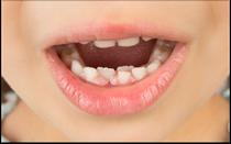 Wenn die bleibenden Zähne schon kommen, obwohl die Milchzähne noch da sind, sollten Sie einen Termin in der Zahnarztpraxis vereinbaren (© Mike D. - Fotolia.com)
