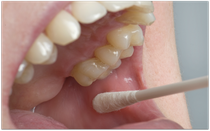 Speicheltest in der Zahnarztpraxis zur Bestimmung des Karies-Risikos (© proDente e.V.)