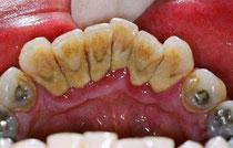 Zahnstein und errötetes Zahnfleisch