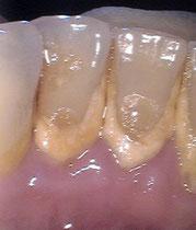 Gelblicher Zahnstein
