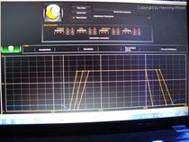 Vertex Illumina SR 600-260-PC-Mondmodul