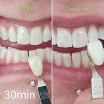 Zahn bleaching