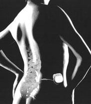 Neuromodulación raíces sacras