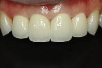 審美歯科ケース