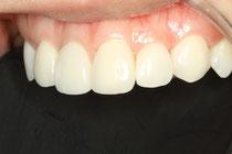 審美歯科ケース 歯の形