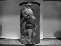 Malformed foetus in the institute of anatomic pathology (Belarus) (1)