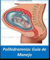 Polihidramnios, Guía Polihidramnios
