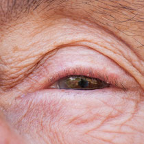Auge Oma O.