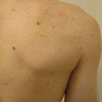 Akne Rücken- Vorherbild