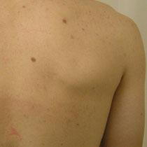 Akne Rücken nach zwei Behandlungen