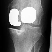 mediale Schlittenprothese mit Kniescheibenersatz