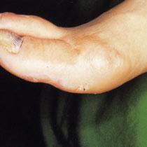 Diabetic foot gangrene - after