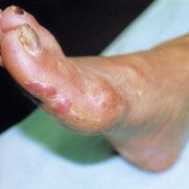 Diabetic foot gangrene - before